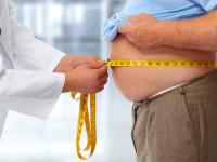 Obezite Cerrahisi 2