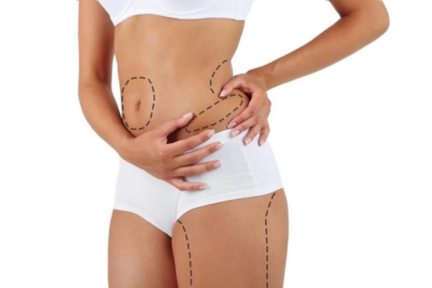 Erimeyen yağlarınızdan liposuction ile kurtulun