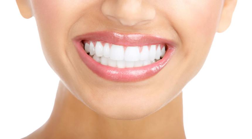 Diş beyazlatma ile sararma ve lekelerden kurtulmak mümkün