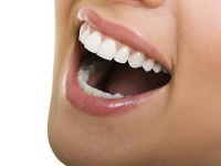 Lingual Ortodonti Tedavisi