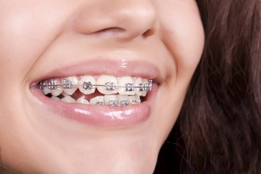 Diş teli kullananlara Ramazan ayında bakım önerileri