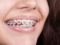 Ramazan ayında ağız ve diş bakımı