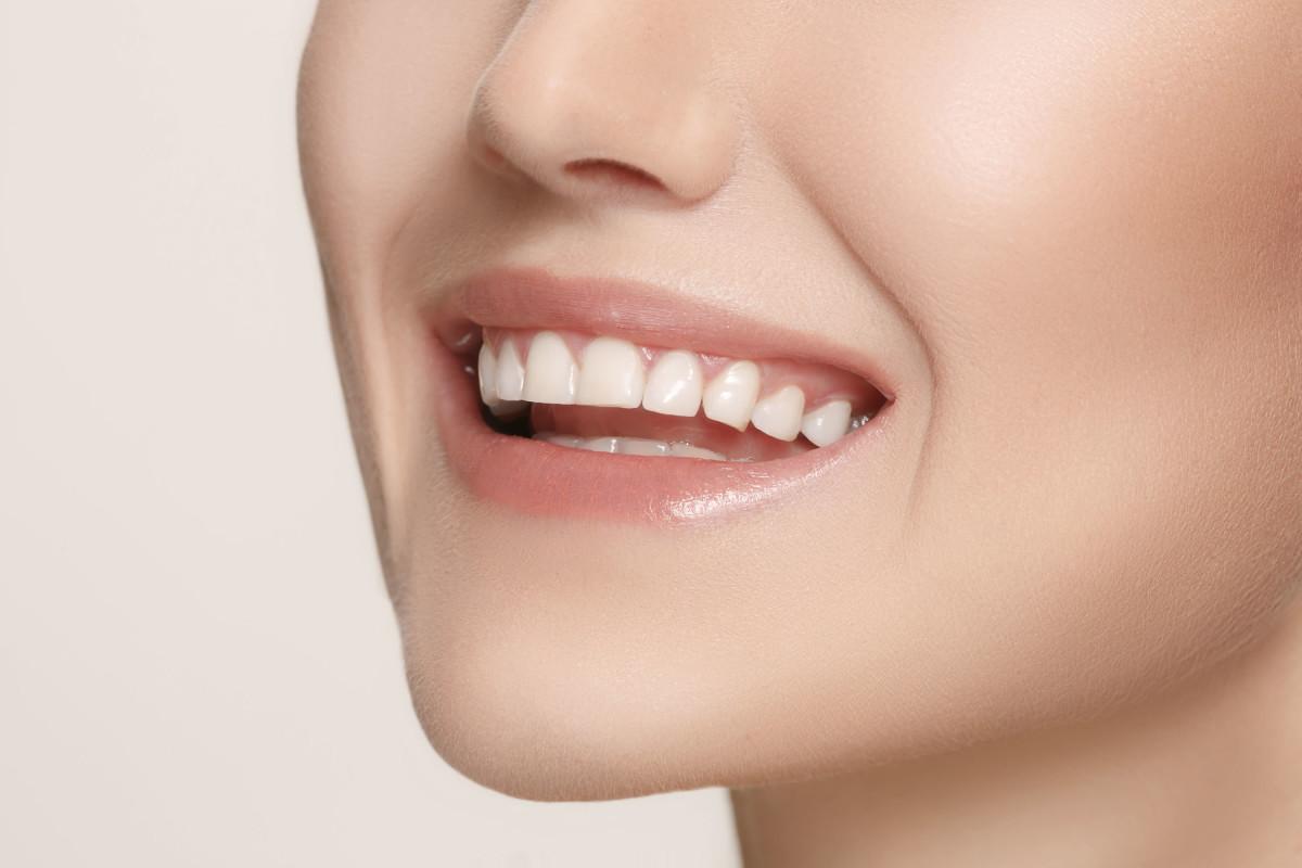 Yaza görünmez diş telleri ile merhaba deyin